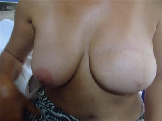 meme-ucu-dovmesi---nipple-areola-tattoo